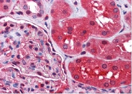 Immunohistochemistry (Formalin/PFA-fixed paraffin-embedded sections) - Radixin antibody (ab111064)