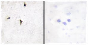 Immunohistochemistry (Formalin/PFA-fixed paraffin-embedded sections) - Kv2.1 antibody (ab111122)