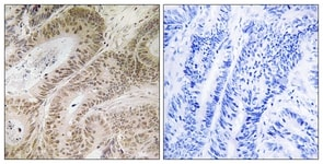 Immunohistochemistry (Formalin/PFA-fixed paraffin-embedded sections) - RDM1 antibody (ab111139)