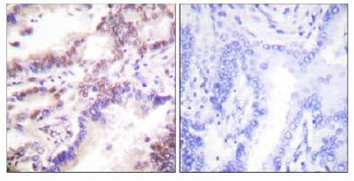 Immunohistochemistry (Formalin/PFA-fixed paraffin-embedded sections) - Ctip1 antibody (ab111168)