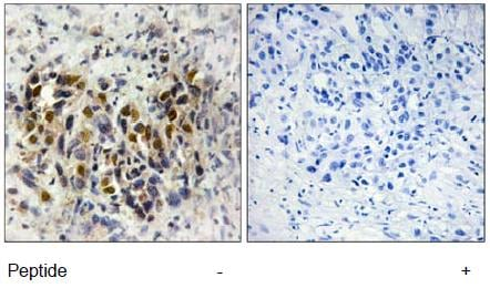 Immunohistochemistry (Formalin/PFA-fixed paraffin-embedded sections) - Iroquois homeobox protein 3 antibody (ab111180)