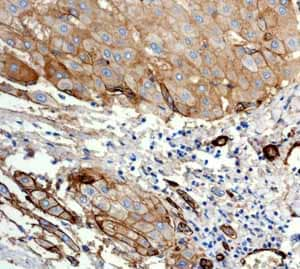 Immunohistochemistry (Formalin/PFA-fixed paraffin-embedded sections)-Anti-CD239 antibody [EPR4164](ab111181)
