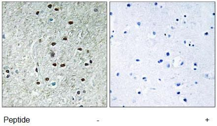 Immunohistochemistry (Formalin/PFA-fixed paraffin-embedded sections) - REXO1 antibody (ab111189)