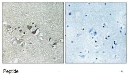 Immunohistochemistry (Formalin/PFA-fixed paraffin-embedded sections) - SH3TC2 antibody (ab111197)