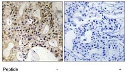 Immunohistochemistry (Formalin/PFA-fixed paraffin-embedded sections) - LATS1 antibody (ab111206)