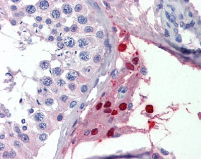 Immunohistochemistry (Formalin/PFA-fixed paraffin-embedded sections) - ThPok antibody (ab111211)