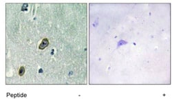 Immunohistochemistry (Formalin/PFA-fixed paraffin-embedded sections) - KCNIP1 antibody (ab111217)