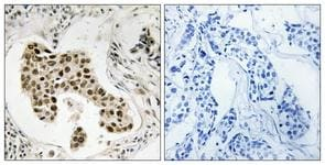 Immunohistochemistry (Formalin/PFA-fixed paraffin-embedded sections) - PMS2 antibody (ab111253)