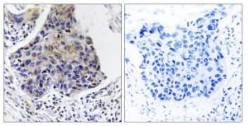 Immunohistochemistry (Formalin/PFA-fixed paraffin-embedded sections) - C16orf44 antibody (ab111256)