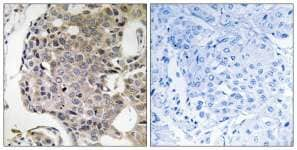 Immunohistochemistry (Formalin/PFA-fixed paraffin-embedded sections) - RIMS4 antibody (ab111257)