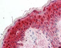 Immunohistochemistry (Formalin/PFA-fixed paraffin-embedded sections) - 14-3-3 sigma (acetyl10) antibody (ab111305)