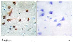 Immunohistochemistry (Formalin/PFA-fixed paraffin-embedded sections) - ADAR1 antibody (ab111307)