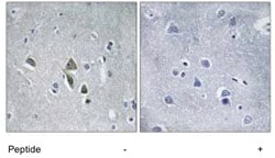 Immunohistochemistry (Formalin/PFA-fixed paraffin-embedded sections) - OAZ1 antibody (ab111342)