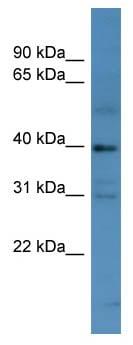 Western blot - MAGEE1 antibody (ab111361)