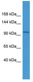 Western blot - SMUBP2 antibody (ab111364)