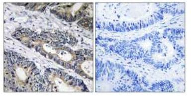 Immunohistochemistry (Formalin/PFA-fixed paraffin-embedded sections) - GLB1L3 antibody (ab111403)