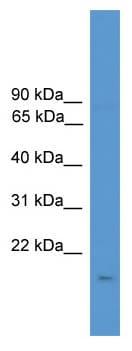 Western blot - CSN3 antibody (ab111406)