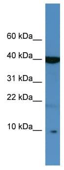 Western blot - SPINK6 antibody (ab111420)