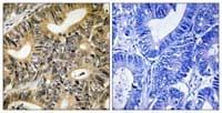 Immunohistochemistry (Formalin/PFA-fixed paraffin-embedded sections) - eIF4EBP1 (phospho T70) antibody (ab111421)