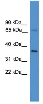 Western blot - ELL2 antibody (ab111436)