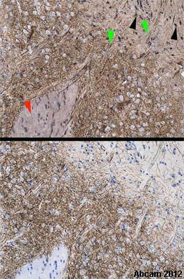 Immunohistochemistry (Formalin/PFA-fixed paraffin-embedded sections) - Anti-Dopamine Transporter antibody (ab111468)