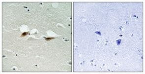 Immunohistochemistry (Formalin/PFA-fixed paraffin-embedded sections) - ATF2 (phospho S472) antibody (ab111482)