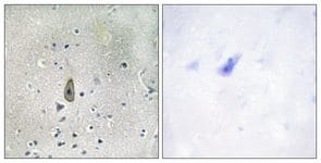 Immunohistochemistry (Formalin/PFA-fixed paraffin-embedded sections) - KCNJ1 (phospho S44/25) antibody (ab111489)