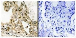 Immunohistochemistry (Formalin/PFA-fixed paraffin-embedded sections) - p53 (phospho T387) antibody (ab111543)