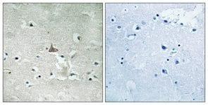 Immunohistochemistry (Formalin/PFA-fixed paraffin-embedded sections) - TrkB (phospho Y706 + Y707) antibody (ab111545)