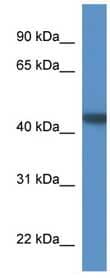 Western blot - PNMA6B antibody (ab111550)