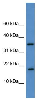 Western blot - WBP5 antibody (ab111602)