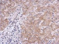 Immunohistochemistry (Formalin/PFA-fixed paraffin-embedded sections) - KLHL21 antibody (ab111604)