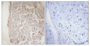 Immunohistochemistry (Formalin/PFA-fixed paraffin-embedded sections) - COL6A1 antibody (ab111819)