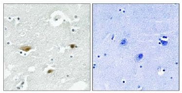 Immunohistochemistry (Formalin/PFA-fixed paraffin-embedded sections) - STK39 (phospho S325) antibody (ab111824)