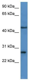 Western blot - FGFBP2 antibody (ab111831)