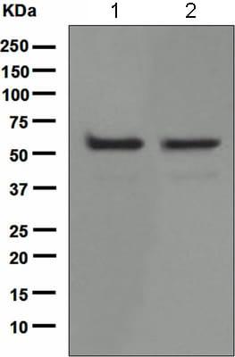Western blot - KATNA1 antibody [EPR5071] (ab111881)