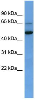Western blot - PIQ antibody (ab111920)