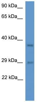 Western blot - MED19 antibody (ab111932)