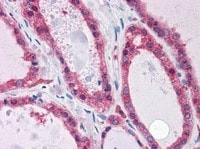 Immunohistochemistry (Formalin/PFA-fixed paraffin-embedded sections) - KCNN2 antibody (ab111939)