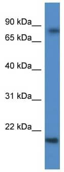 Western blot - KRTAP1-5 antibody (ab111961)