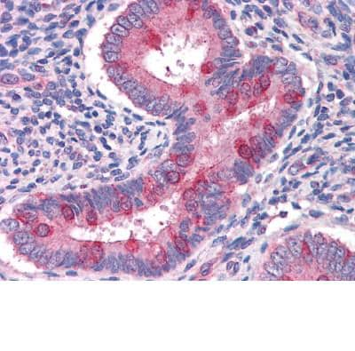 Immunohistochemistry (Formalin/PFA-fixed paraffin-embedded sections) - Hamartin antibody (ab111981)