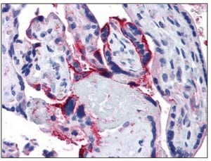Immunohistochemistry (Formalin/PFA-fixed paraffin-embedded sections) - APH1a antibody (ab111992)