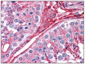 Immunohistochemistry (Formalin/PFA-fixed paraffin-embedded sections) - Cytochrome b reductase 1 antibody (ab111997)