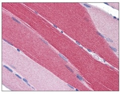 Immunohistochemistry (Formalin/PFA-fixed paraffin-embedded sections) - PDE4D antibody (ab112018)