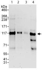 Western blot - Zfp281 antibody (ab112047)