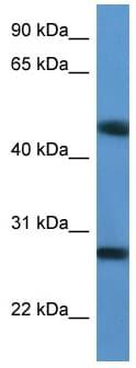 Western blot - TM2D2 antibody (ab112079)