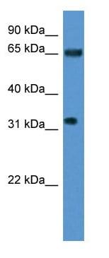Western blot - SRRM4 antibody (ab112092)