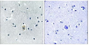 Immunohistochemistry (Formalin/PFA-fixed paraffin-embedded sections) - Bim (phospho S59) antibody (ab112106)