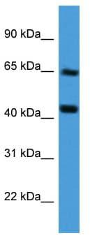 Western blot - COL8A2 antibody (ab112110)