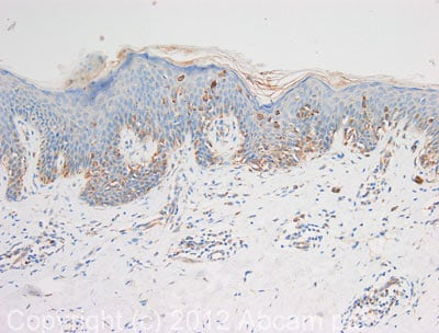 Immunohistochemistry (Formalin/PFA-fixed paraffin-embedded sections) - Anti-Tyrosinase antibody (ab112231)